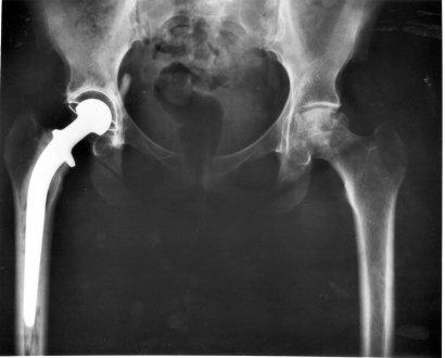 Radiografía de una displasia