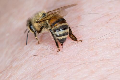 Cómo curar picaduras de insectos