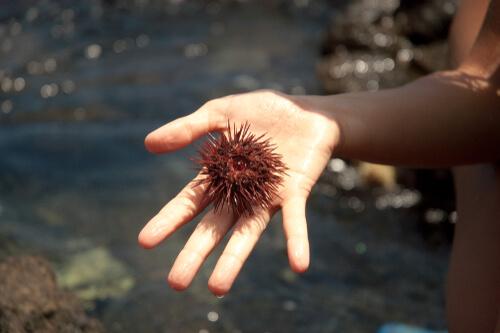 Picadura de erizo de mar: primeros auxilios