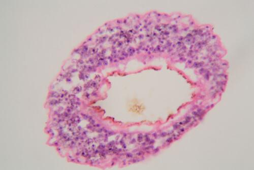 Schistosoma mansoni: parásito