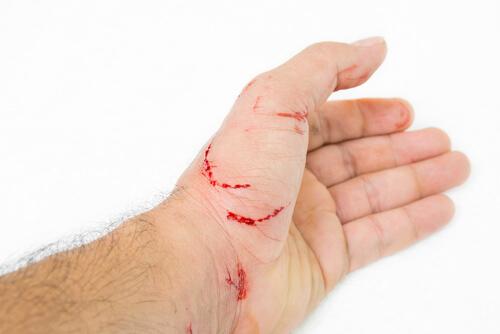 Enfermedad por arañazo de gato: síntomas