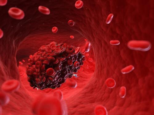 Pueden sanguíneos alimentos los coágulos qué disolver