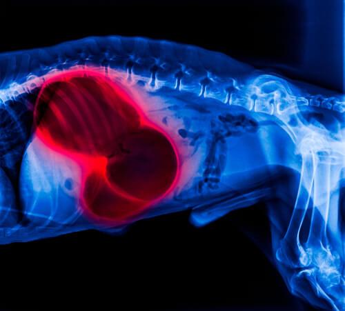 Radiografía abdominal