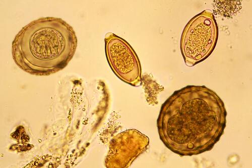 Huevo de helminto en heces visto en el microscopio.