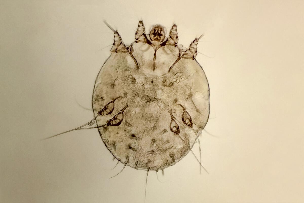 Una garrapata al microscopio.