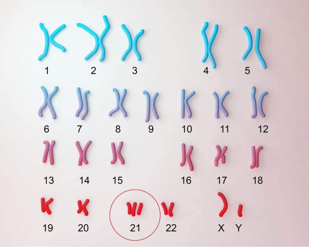 Na síndrome de Down, o cromossomo 21 tem uma cópia extra.